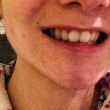 lib tooth pa
